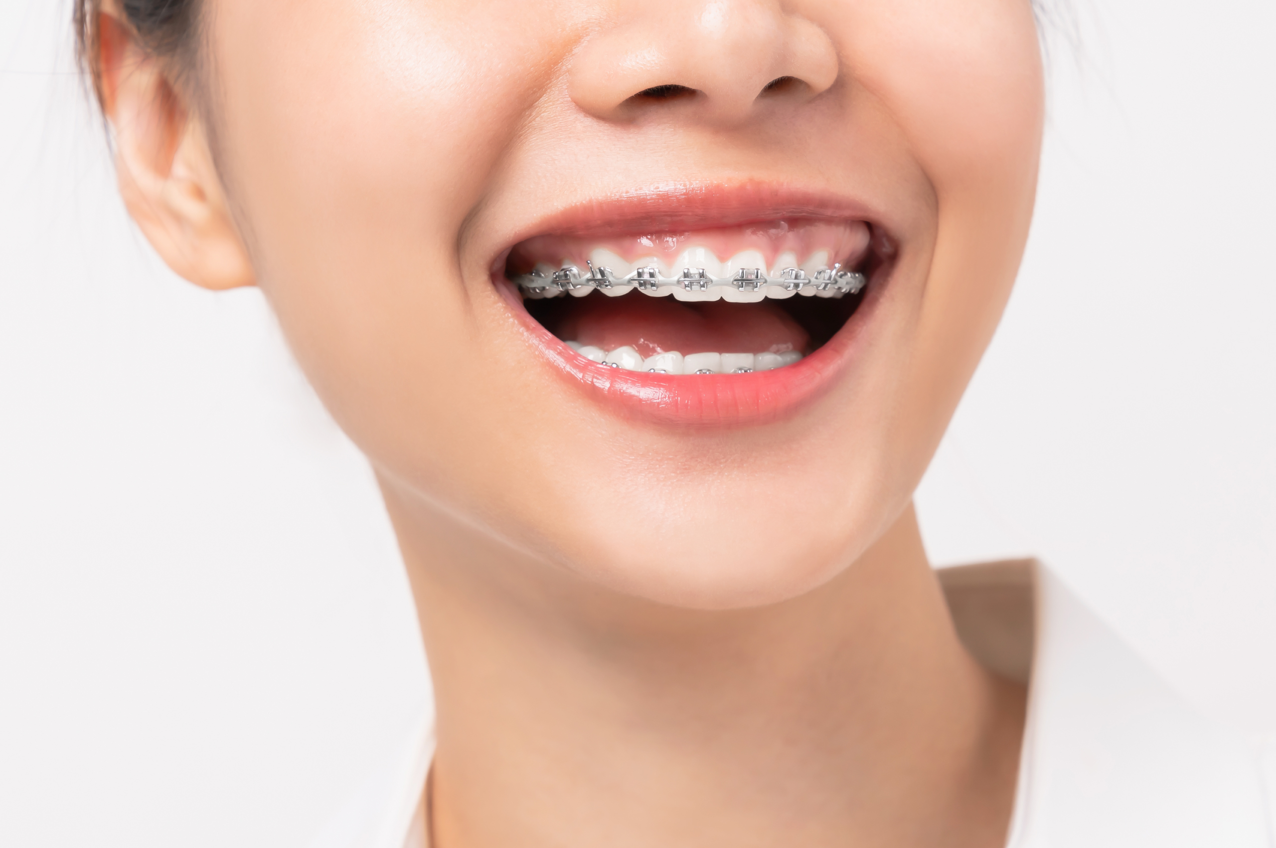 Dental braces help perfect your smile